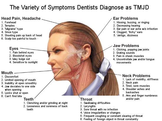 TMJ symptoms diagram: Heaches, migraine, sinus, shooting pain, scalp pain, ear problems, hissing, uzzing, ringing, decreasing hearing, ear pain without infection, itchy ears, virtigo, dizziness, pain behind eyes, bloodshot eyes, eyes bulge out, sensitive to slunlight, jaw problems, clicking or popping jaw joints, grating sounds, pain in cheek muscles, uncontrollable jaw or tongue movements, mouth discomfort, mimited ability to open mouth, inability ot open smoothly, jaw deviates to one side, jaw locks shut or open, can't find bite, swallowing difficulties, laryngitis, sore throat no infection, voice irregularities or changes, frequent coughing or constant clearing of throat, feeling of foreign object in throat constantly, neck problems, upper back problems, neck pain, back pain, tires sore muscles, whoulder aches, bachaches, arm and finger numbness and/or pain